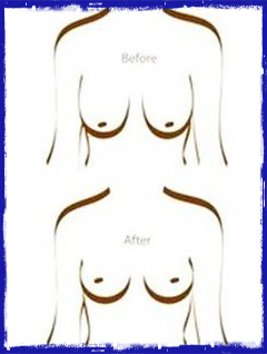 image for real plastic surgery patients see before after photos